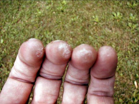 Articulațiile degetelor doare la chitară, Articulațiile pe degete doare după ce cântă la chitară