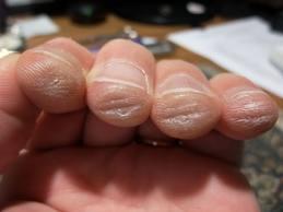 durere în articulațiile degetului chitaristului